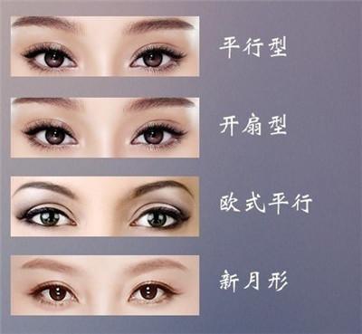 做双眼皮手术后需要多久时间恢复?
