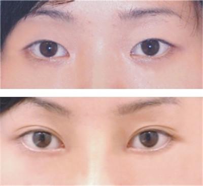 做双眼皮手术后需要多久时间恢复