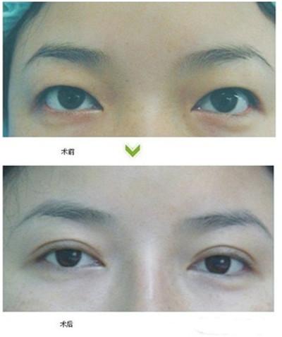 做双眼皮手术的术后护理怎么做