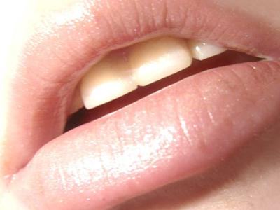 嘴唇肌肤结构图