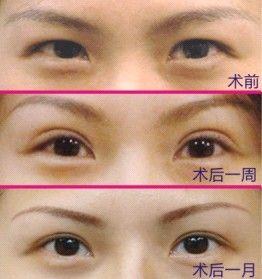 眼部整容有哪些_开眼角手术的副作用有哪些_整形频道_寻医问药网_xywy.com