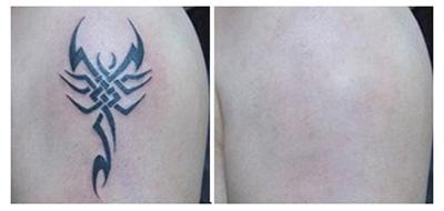 洗纹身效果图