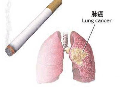 肺癌患者需要护理的措施有哪些