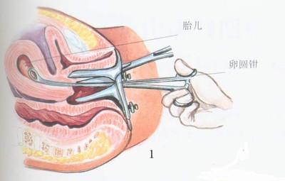 产后子宫脱垂图片