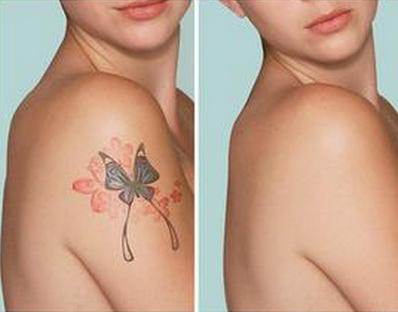 决定激光洗纹身的费用因素是什么