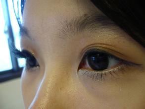 南京开双眼皮整形医院的价格贵吗