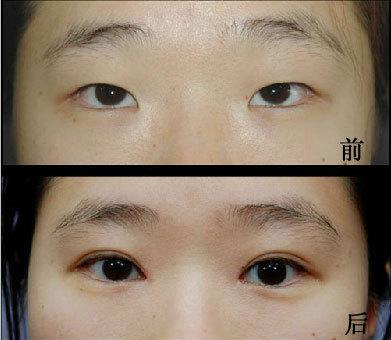 南京做双眼皮手术好看吗