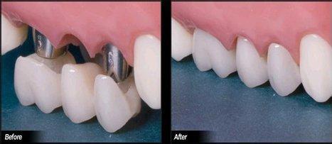 种植牙齿的步骤: 第一步:术前与患者沟通