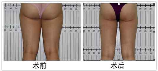 大腿关节结构示意图