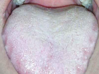 儿童舌苔怎么看图解