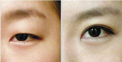 南京韩式双眼皮手术价格