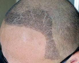 植发老了会掉吗