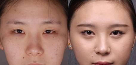 什么是韩式三点定位双眼皮