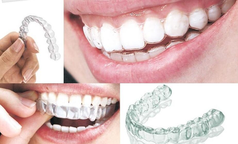 牙齿矫正有什么危害图片
