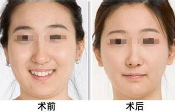 哪些人适合做面部吸脂手术
