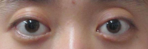 寻医问药网 整形项目 手术 眼部整形 >眼球突出   眼球突出往往是病