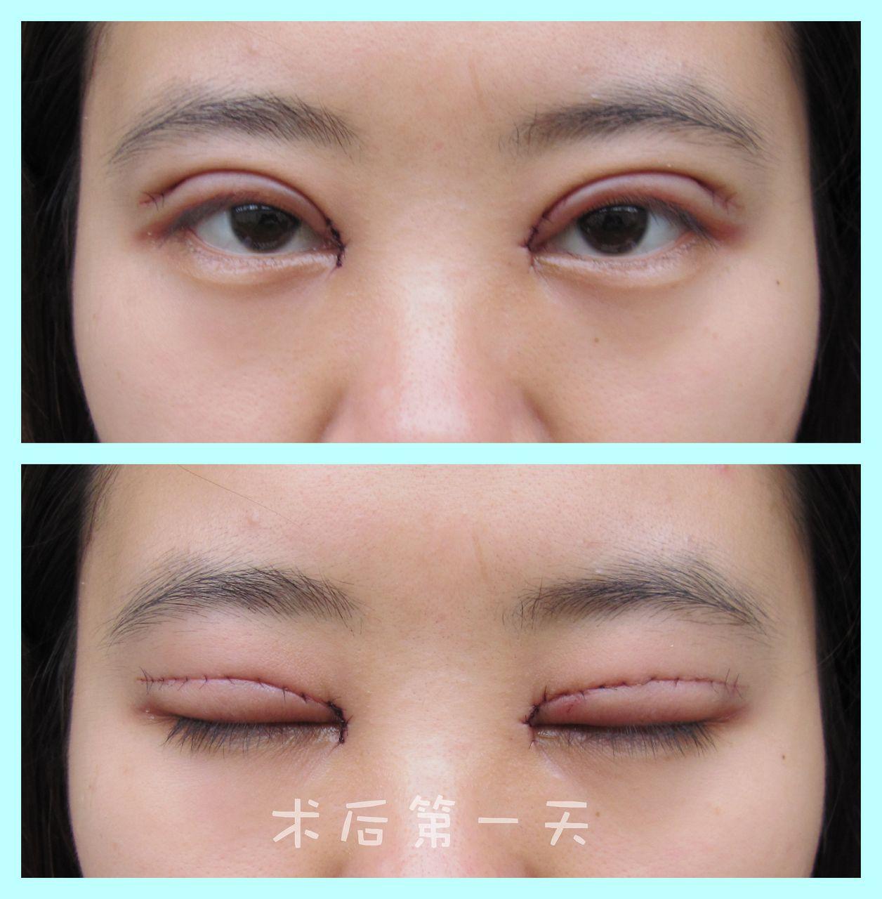无痕开眼角手术图解