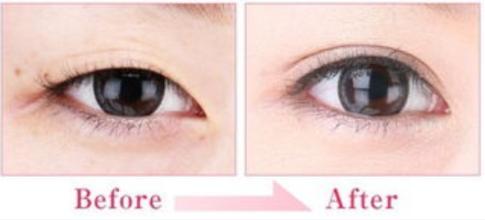 南京双眼皮医院微创双眼皮价格如何