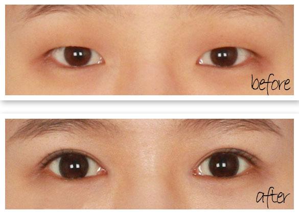 南京人造双眼皮