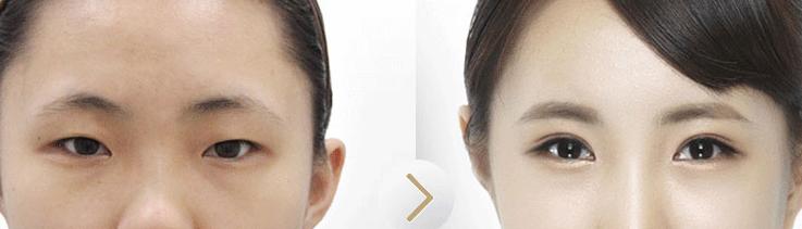 韩式双眼皮是一种永久式的