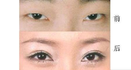南京韩式开双眼皮手术好吗