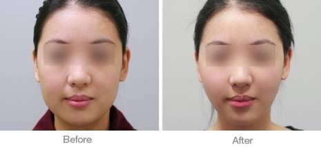 瘦脸方法图片步骤