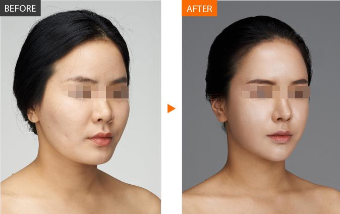 按摩瘦脸图片gif的正确步骤