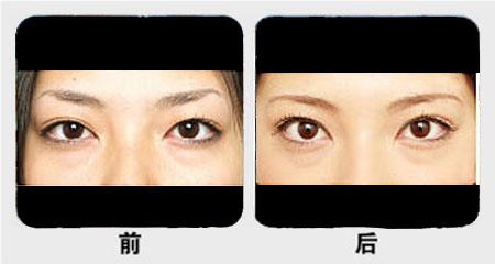 南京开双眼皮手术哪种好