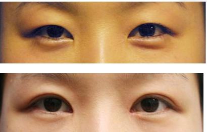 南京割双眼皮手术怎么样