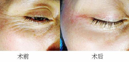 眼部皮肤组织结构图