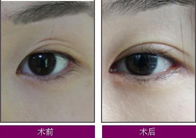 南京双眼皮手术医院