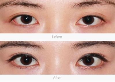 南京双眼皮埋线效果如何呢