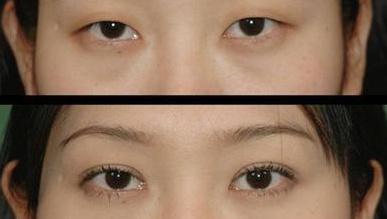 南京怎么做切开双眼皮手术