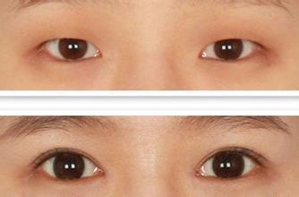 南京双眼皮手术方法介绍