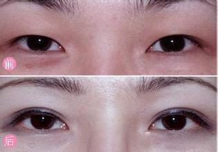 南京双眼皮手术价格是多少