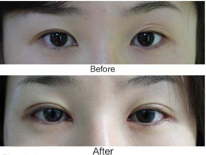 南京修复双眼皮方法有哪些