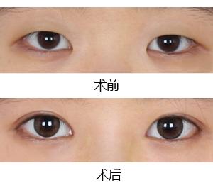 南京割双眼皮多少钱呢
