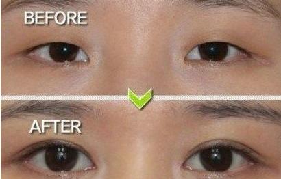 埋线双眼皮手术前后对比图
