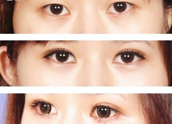 南京割双眼皮手术好不好