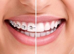 畸形牙齿矫正