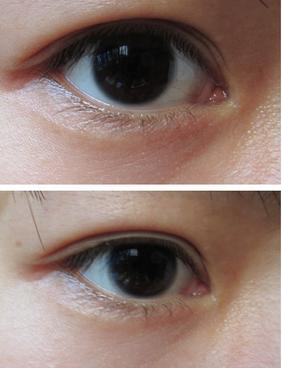 南京割双眼皮手术有后遗症吗图片