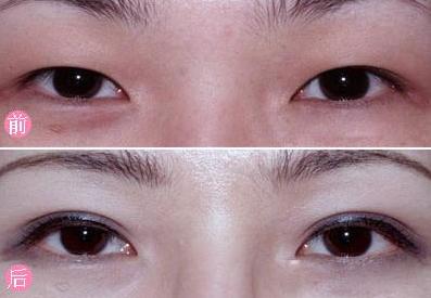 单眼皮怎么变双眼皮