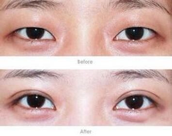 北京做埋线双眼皮手术好吗