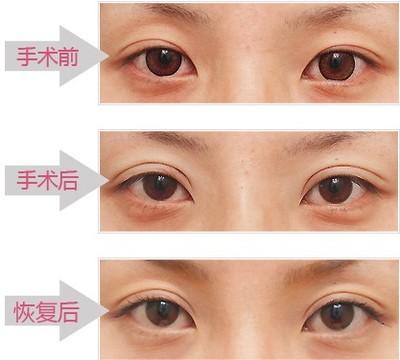 上海双眼皮失败修复的费用贵吗