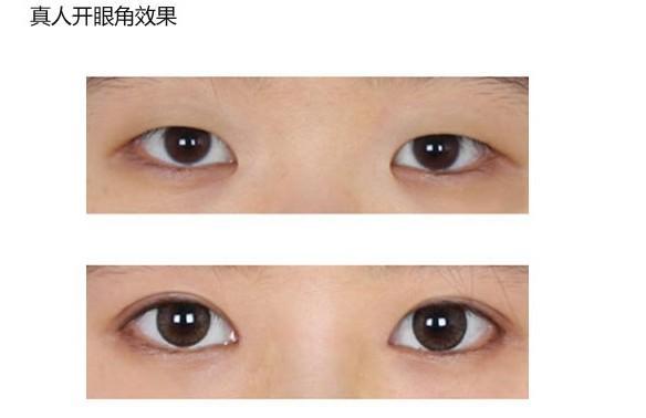 南京开眼角前后对比图展示