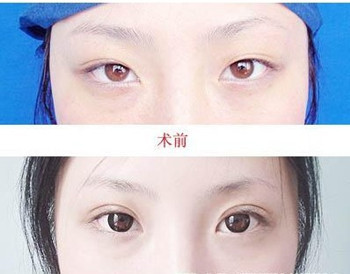 南京哪个医院开双眼皮比较好