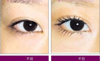 开眼角以后眼睛会增大吗