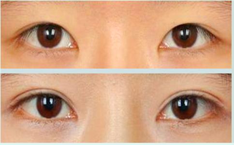 微创无痕:韩式双眼皮手术是采用不开刀的三点