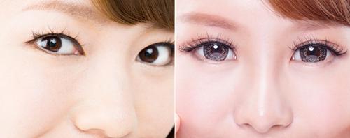 南京修复双眼皮手术如何