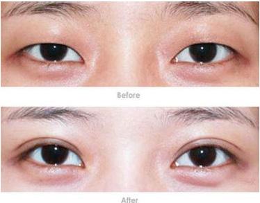 南京双眼皮手术报价是多少呢